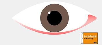Rode ogen een symptoom bij huisstofmijt allergie